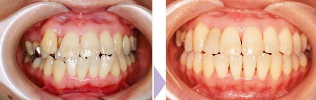銀座みゆき通りデンタルクリニック 歯の矯正