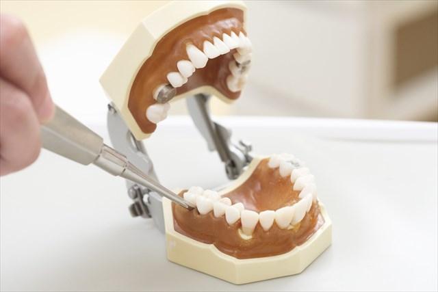 インプラント治療 奥歯