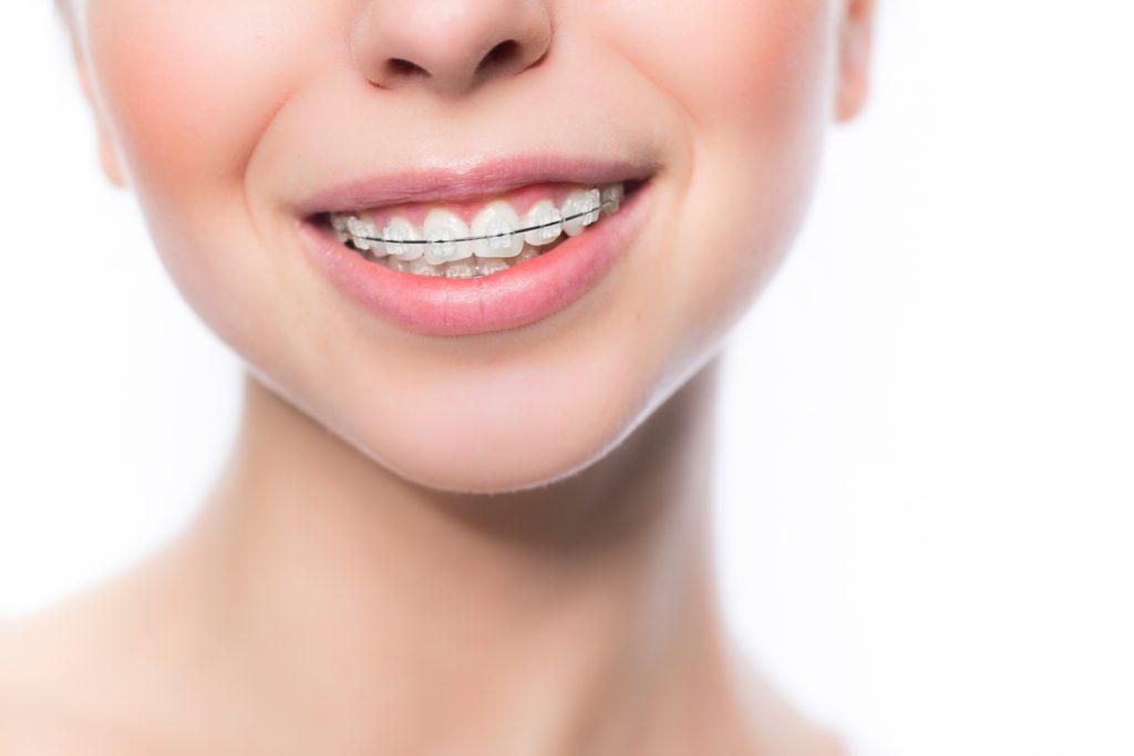 銀座みゆき通りデンタルクリニック 歯並び治療